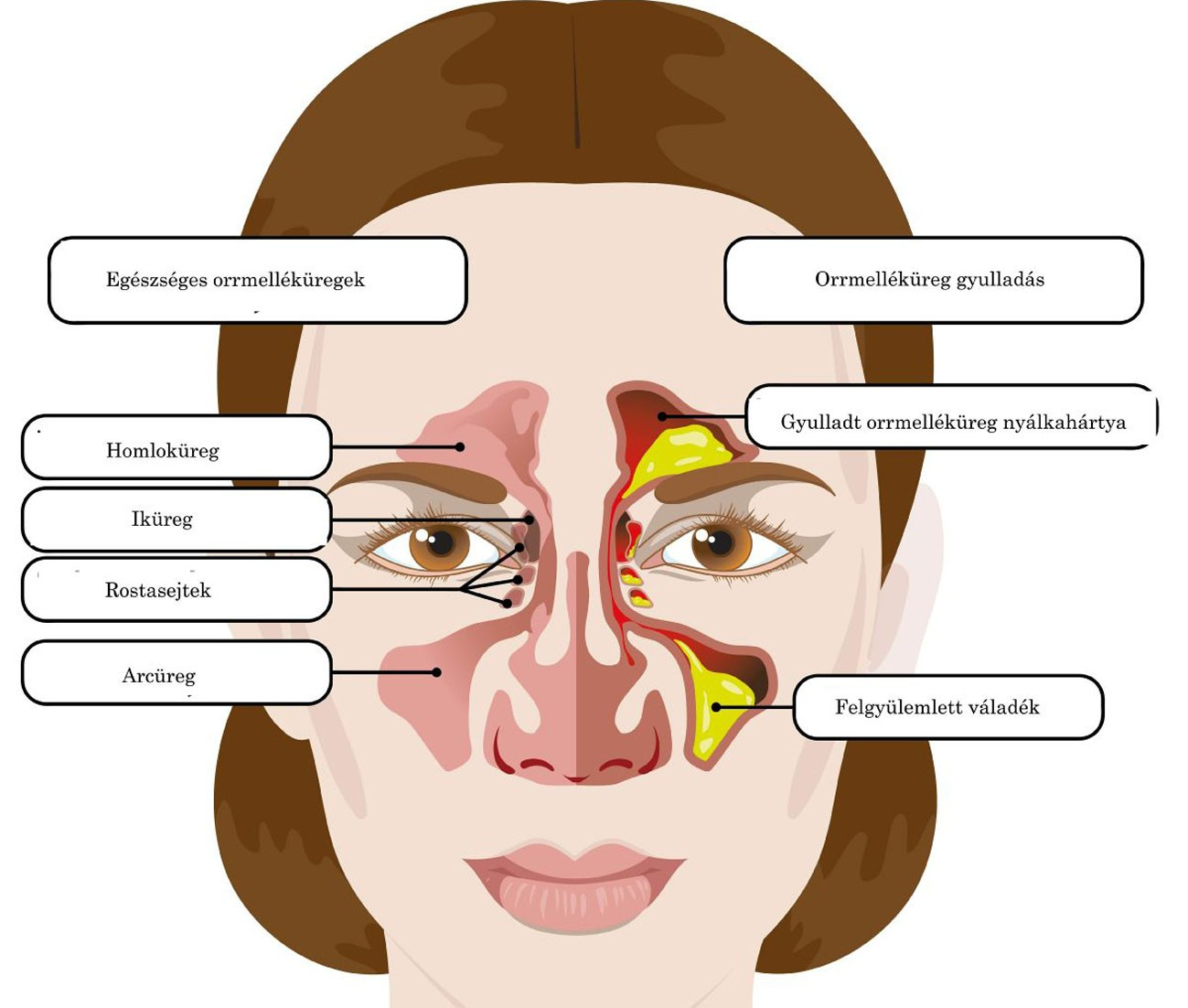 Az arcüreggyulladás kialakulása és kezelése, Rossz lehelet orrmelléküreg-gyulladással